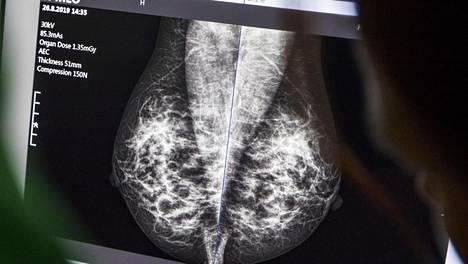 Rintasyöpää seulotaan alkaen 50-vuotiailta suomalaisilta naisilta.