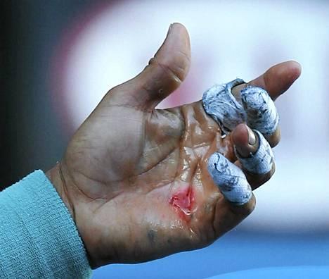 Rafael Nadalin käsi oli puolivälieräottelun jälkeen keskiviikkona verisessä kunnossa.