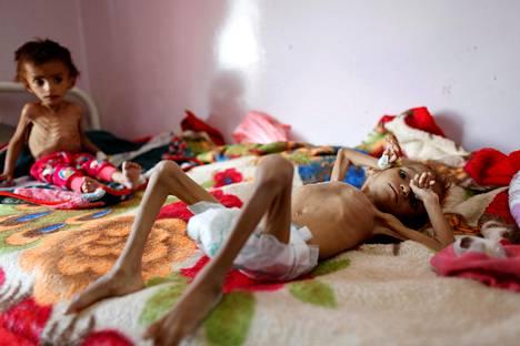 Aliravitsemuksesta kärsiviä jemeniläisiä poikia hoidettiin al-Sabeenin sairaalassa Jemenin pääkaupungissa Sanaassa lokakuun alussa. Sodan synnyttämä nälänhätä uhkaa yli viittä miljoonaa jemeniläistä lasta.