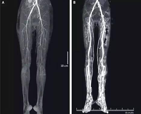 Ergotismi estää verenkiertoa potilaassa. Kuvassa vasemmalla potilan alaraajat ennen hoitoa. Oikeassa kuvassa hoito on jo palauttanut verenkiertoa.