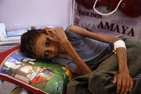 Aliravittu lapsi sai hoitoa Al-Sabeenin sairaalassa Jemenissä helmikuussa. Koronavirus on lisännyt Jemenin nälänhätää entisestään.