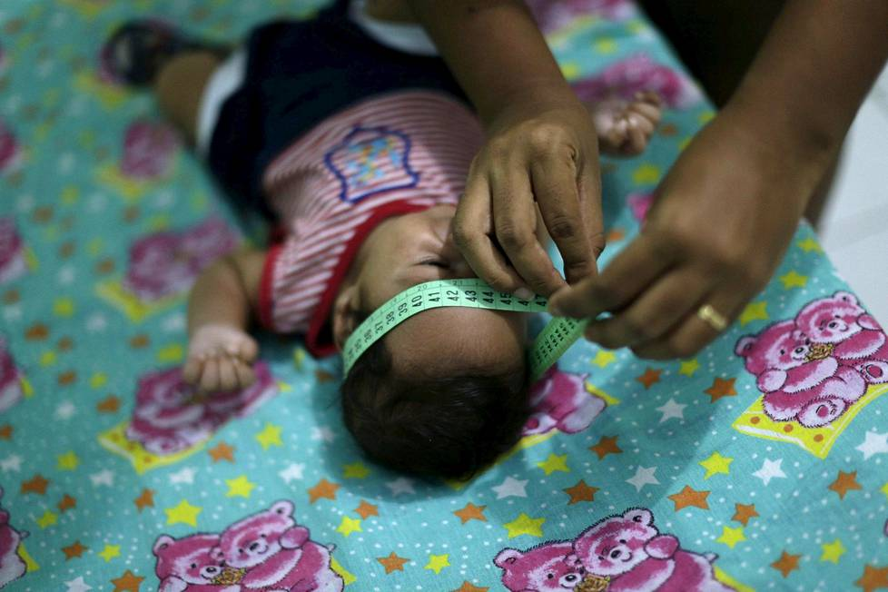 Videoartikkeli, Guilherme Soares Amorim, 2 months, who was born with microcephaly, gets his head measured by his mother Germana Soares, at her house in Ipojuca, Brazil, February 1, 2016
