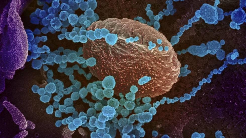 Läpäisyelektronimikroskoopin kuvassa on koronaviruksia covid-19-potilaasta Yhdysvalloissa. Kuva on väritetty.