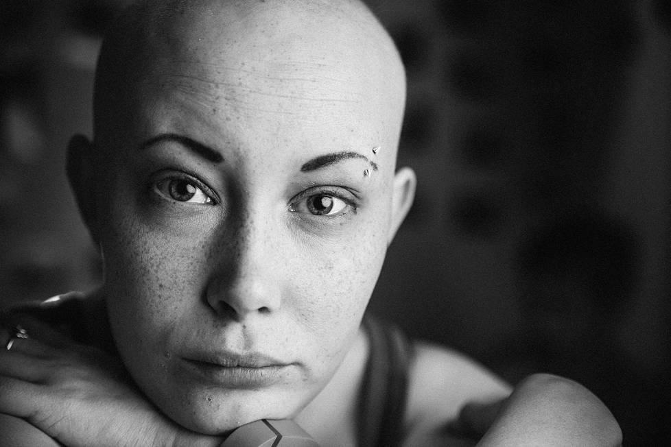 Jonna Kalavaisen tukka, ripset ja kulmakarvat putosivat ensimmäisen leikkauksen ja sytostaattihoidon jälkeen. Hänen puolisonsa Mikko Kalavainen on kuvannut tämän jutun kuvat.
