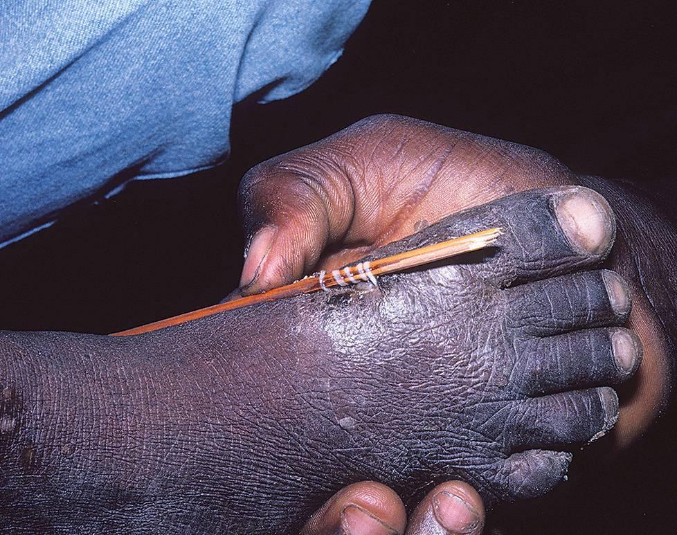 Guineanmadon voi vetää vähä vähältä ulos kiertämällä sitä tiukun ympärille. Loisesta kärsi kolmekymmentä vuotta sitten yli kolme miljoonaa ihmistä. Nyt tapauksia on niin vähän, että loisen arvioidaan katoavan.