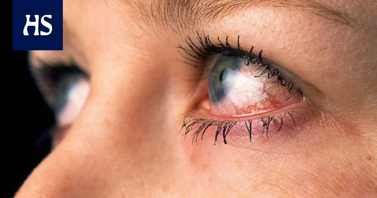 ärhäkkä Silmätulehdus